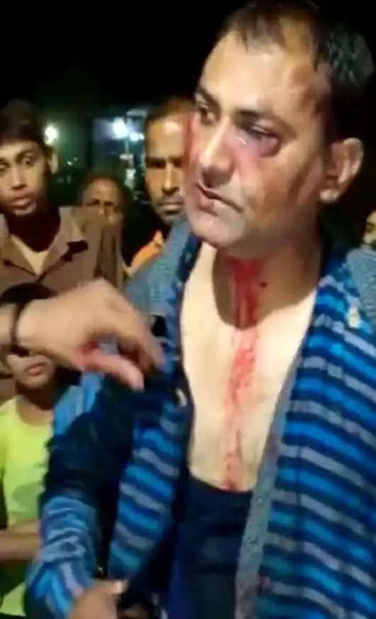 अवैध तरीके से भरी जा रही थी गैस, विरोध करने पर पुलिसकर्मी को बुरी तरह पीटा